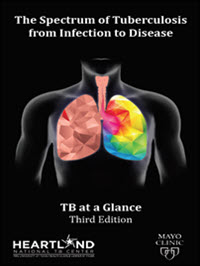 •	The Spectrum of Tuberculosis from Infection to Disease - TB at a Glance: Third Edition